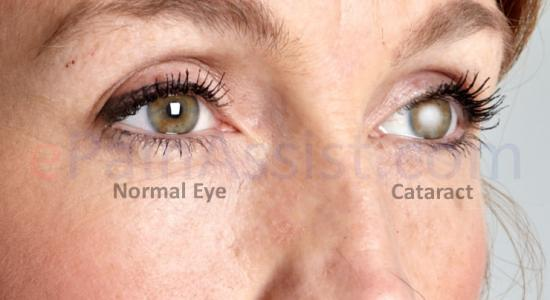 What is Cataract ?